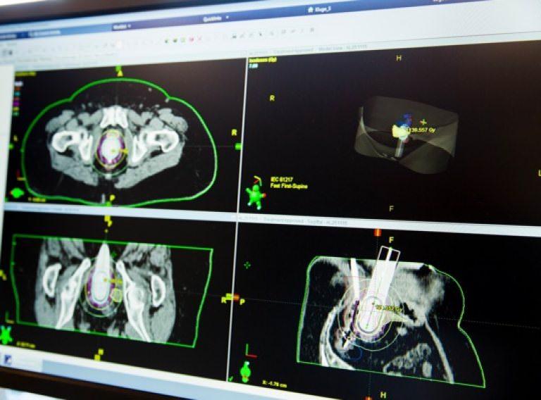 brachytherapie prostata